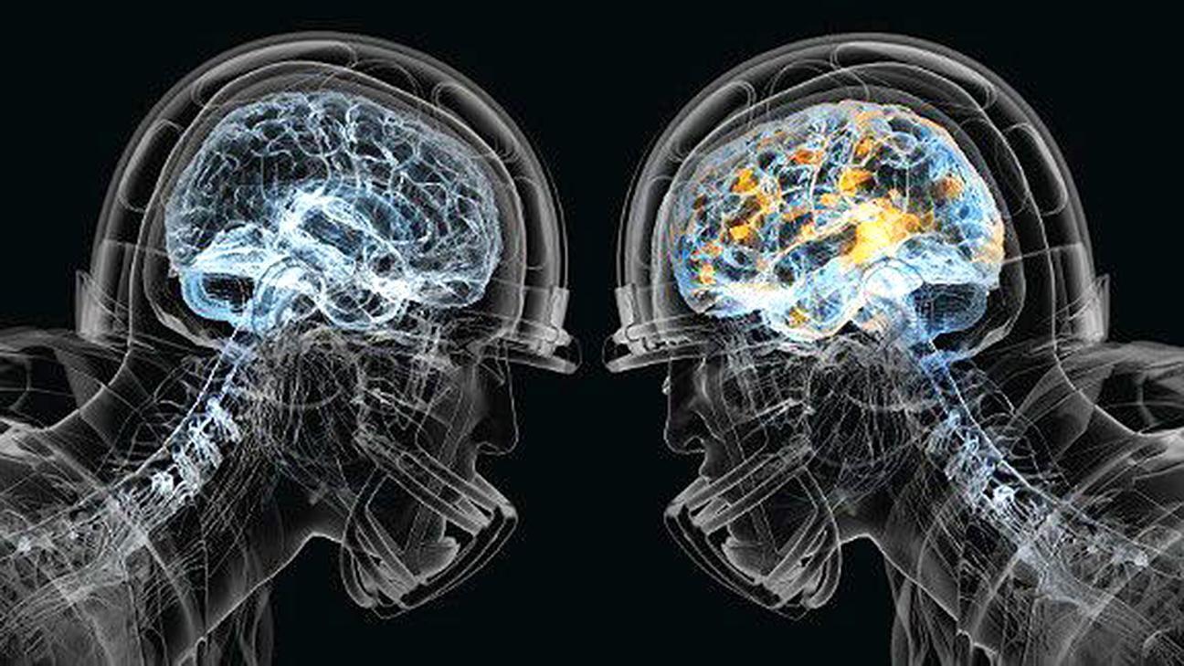 https://secure.espncdn.com/combiner/i?img=/media/motion/2015/1222/dm_151222_otl_nfl_brain_disease/dm_151222_otl_nfl_brain_disease.jpg