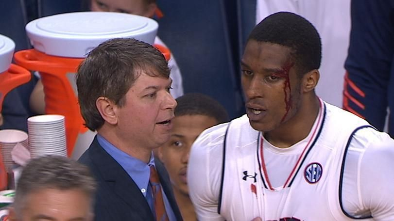 Spencer bleeds from head after hard foul